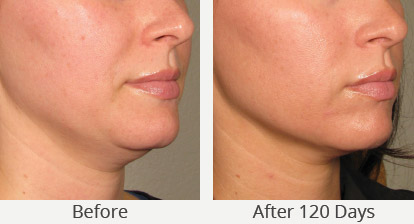 ultherapy-before-and-after-photos-marina-del-rey