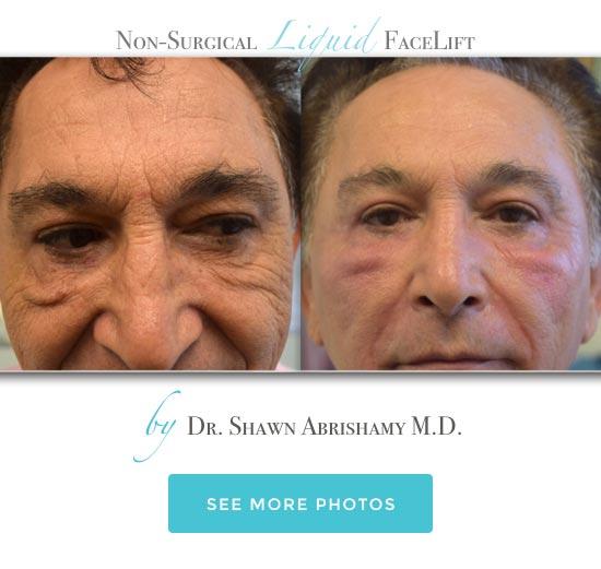 Marina Del Rey Dermatologist Santa Monica Botox Playa