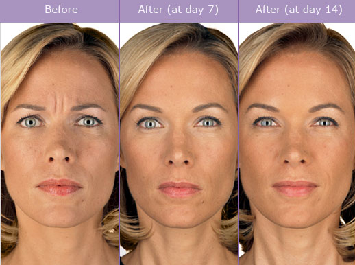Botox before and after results